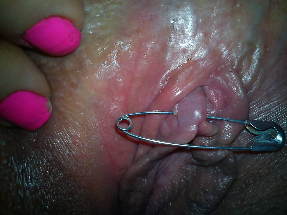 Five things you should know about the clitoris